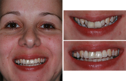 Cosmetic Dentists in Coventry - Coventry Braces Clinic